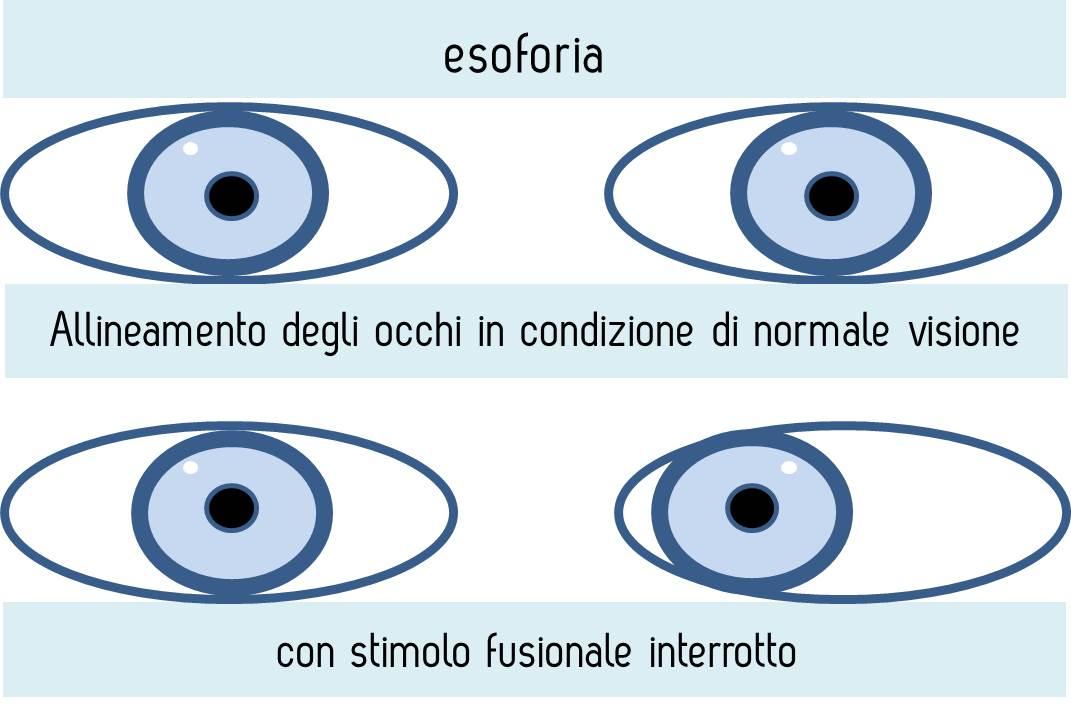 esoforia-Copia