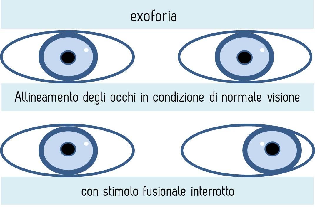 exoforia1