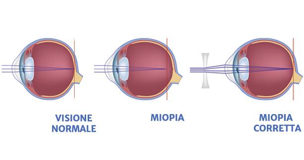 miopia (1)